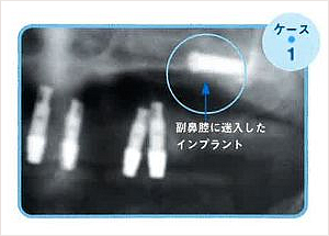 た の 会 きぬ 歯科 者 被害 「インプラント治療」が日本から消える!:FACTA ONLINE