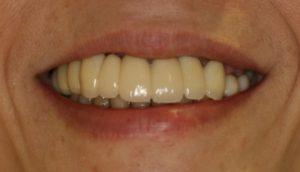 大和市 50代 女性 上顎全体 下顎奥歯 インプラント治療