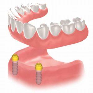 東京都 62歳 男性 インプラント治療 ボールアタッチメント義歯