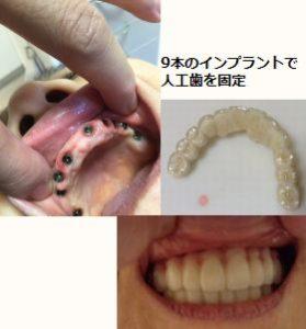 大和市 50代 男性 上歯9本 インプラント治療