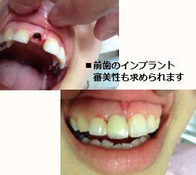 相模原市 20代 女性 前歯のインプラント治療